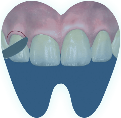 Клиническое удлинение коронки зуба