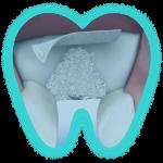 Лоскутная операция в полости рта