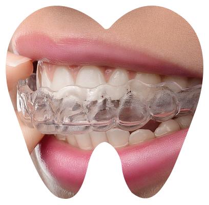 Элайнеры в ортодонтии